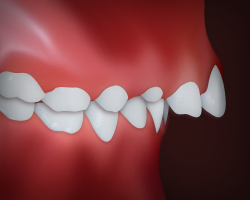 Upper Front Teeth Protrusion