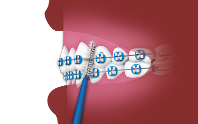 Using an Interdental Toothbrush